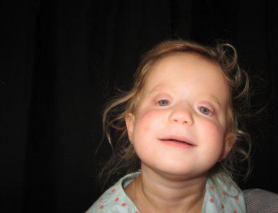 OU pediatrics Ocular prosthetics