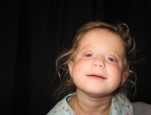 Pediatric Bilateral Ocular Prostheses